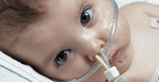 close up of baby with nasal cannula